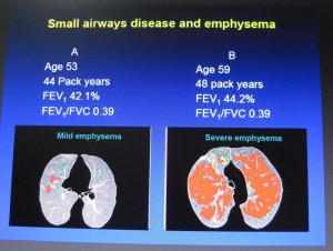 Small airways disease and emphysema