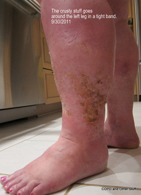 Cellulitis Scarring