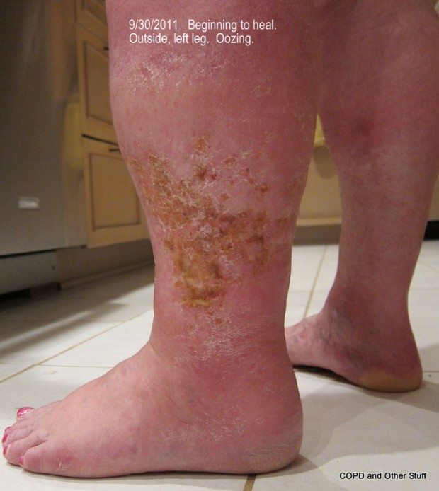 Cellulitis brings a new depth of being and the best shoes in Kitsap ...